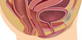 Diagnosis and management of pelvic organ prolapse