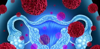 Vaginal Microbiome and Gynecological Cancer