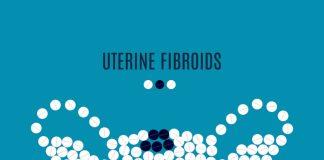 What are uterine fibroids
