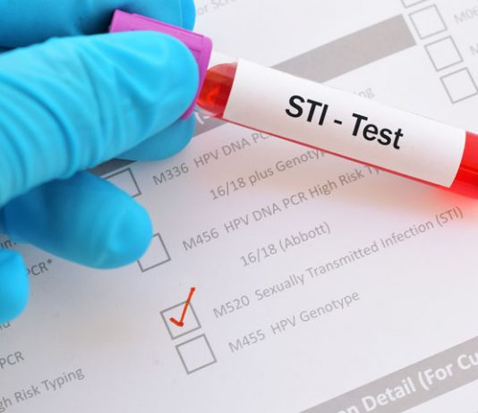 Have a Sexually Transmitted Infection