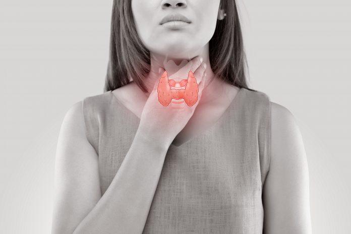 Primary hypothyroidism in women