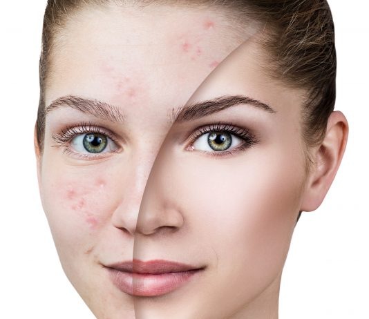 female-acne-update-continuing-education