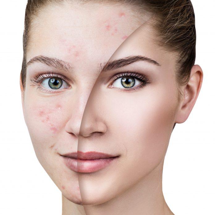female-acne-update-continuing-education