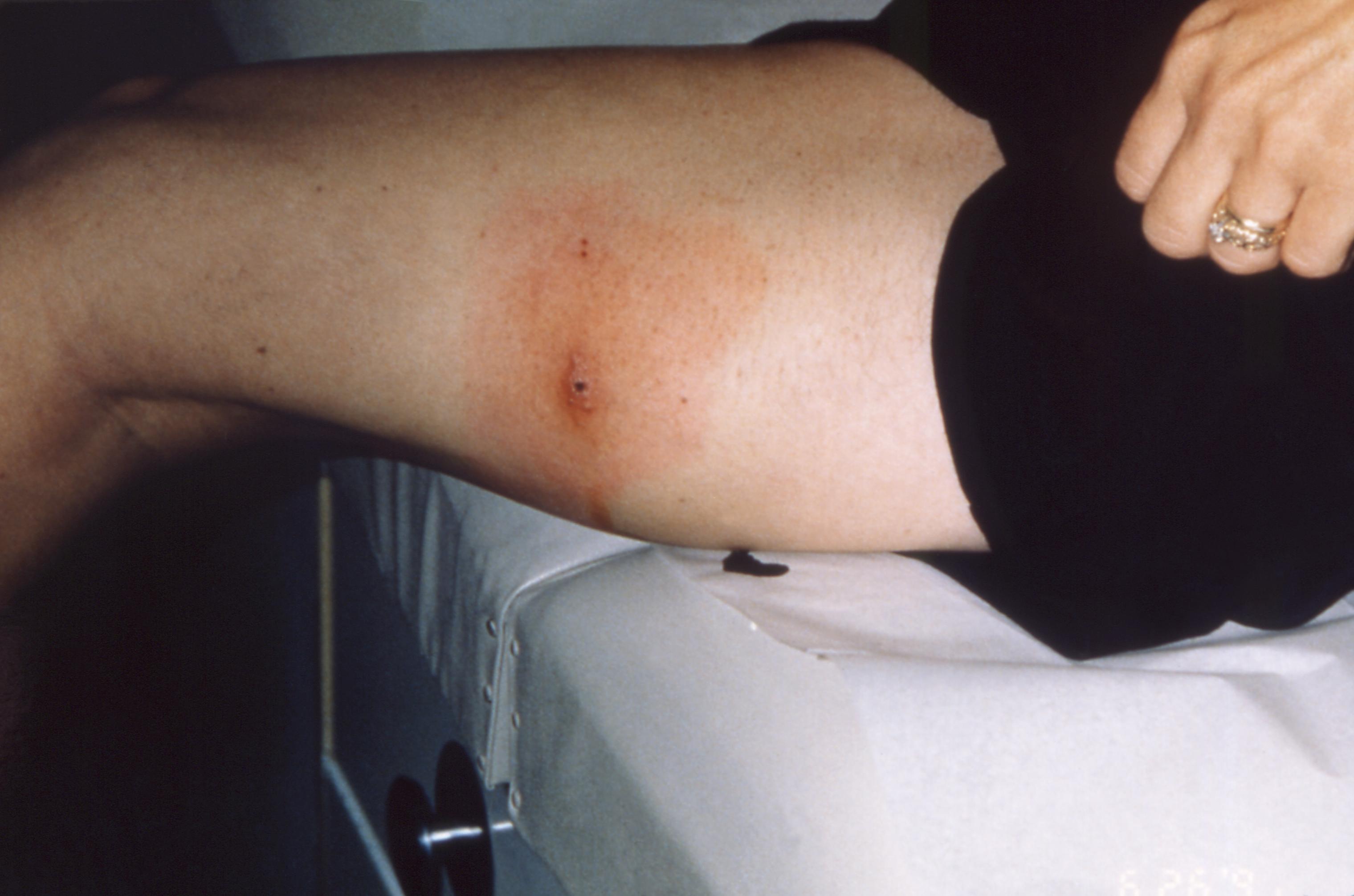 tickborne-illness-women-lyme-disease