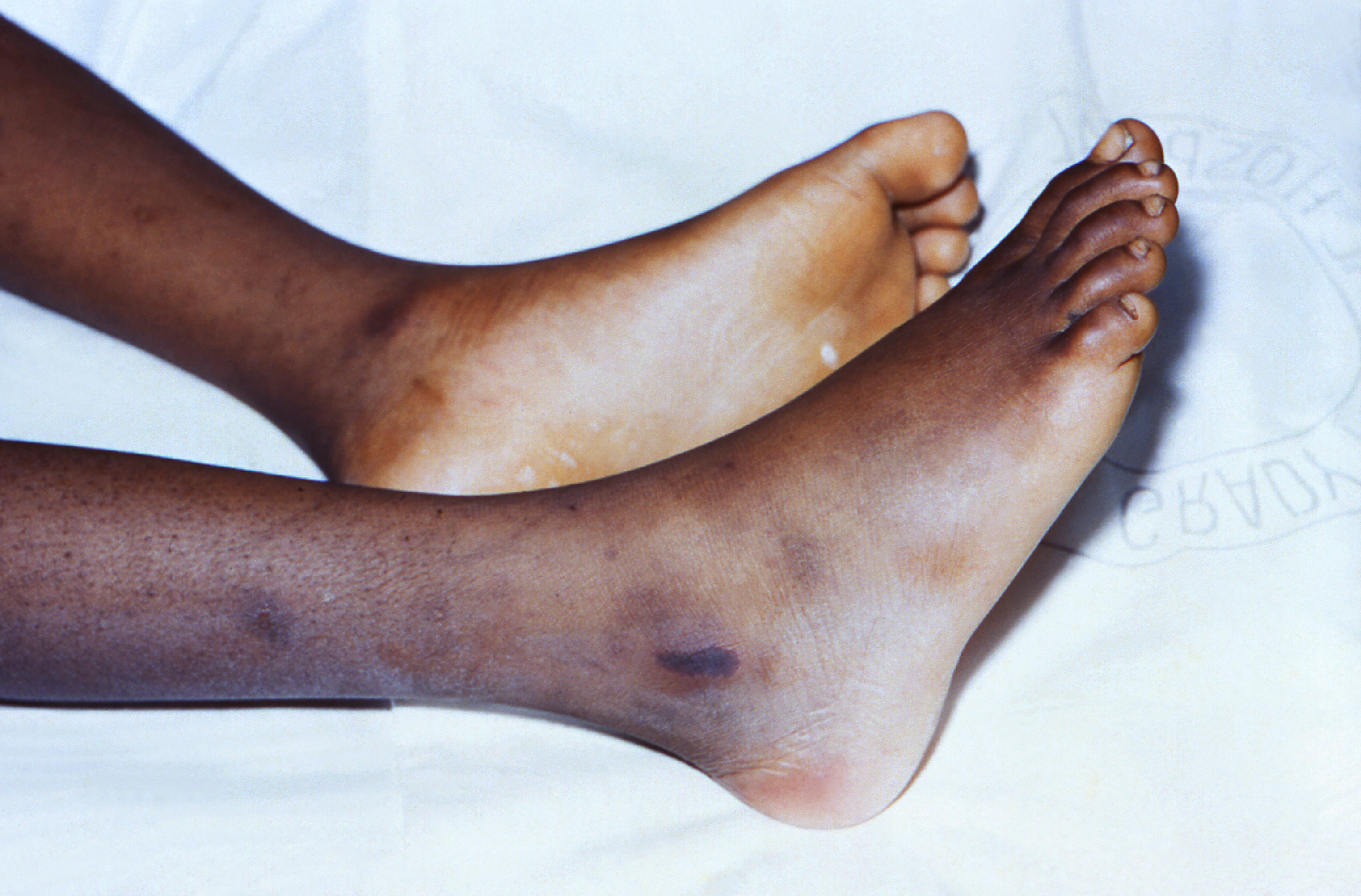 tickborne-illness-women-rocky-mt-spotted-fever