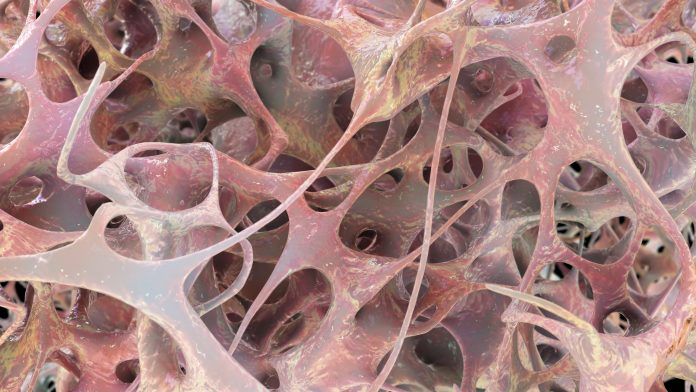 Osteoporotic,Trabecular,Bone,,3d,Illustration,Showing,Fewer,And,Thinner,Trabeculae